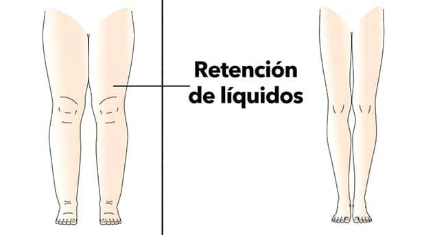 eliminar retencion de líquidos