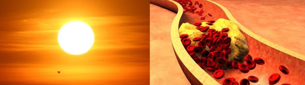 el sol equilibra el colesterol